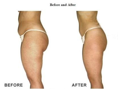 contourclinic fat loss